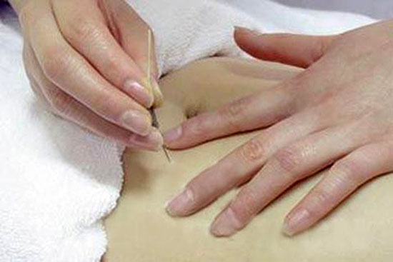 body acupuncture therapy