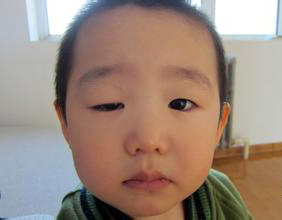 definition of eyelid ptosis in tcm