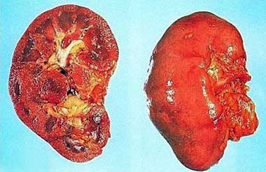 definition of acute nephritis in tcm