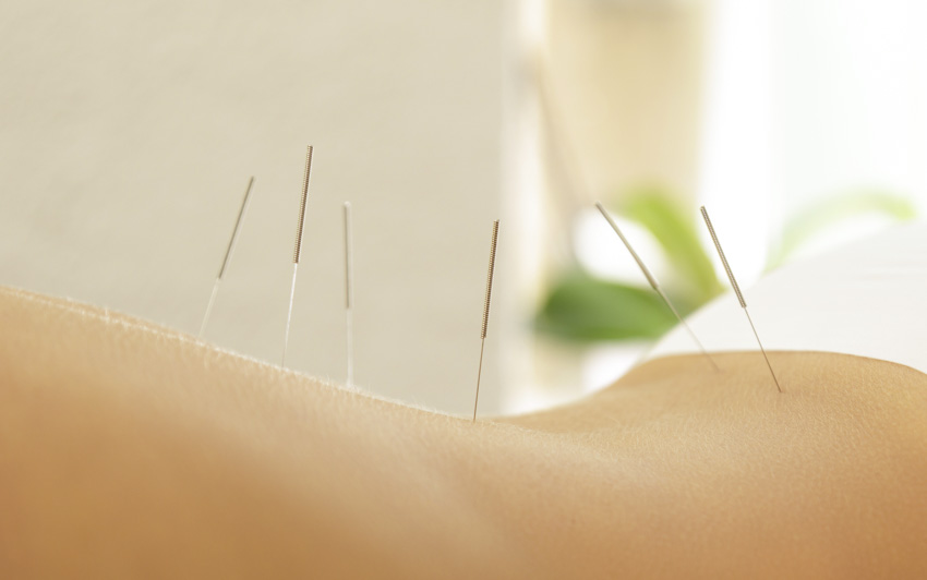 acupuncture and drugs found equally effective for depression